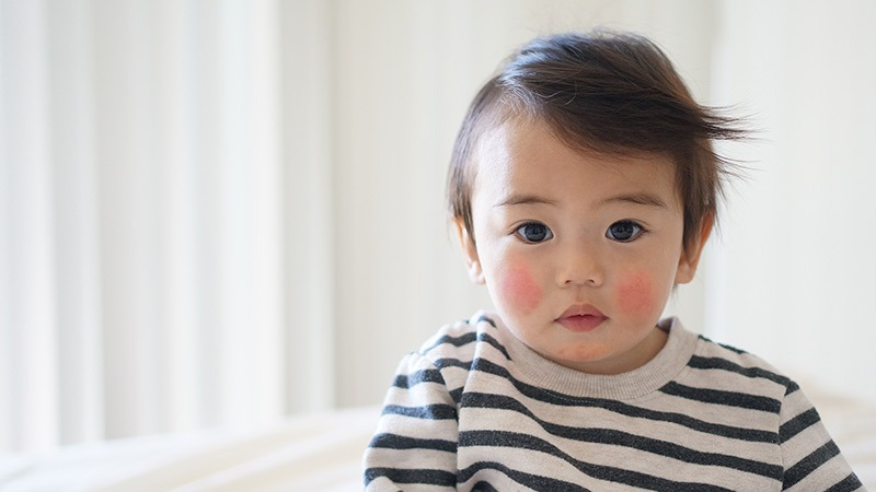 dermatitis atopik pada bayi alergi world allergy week
